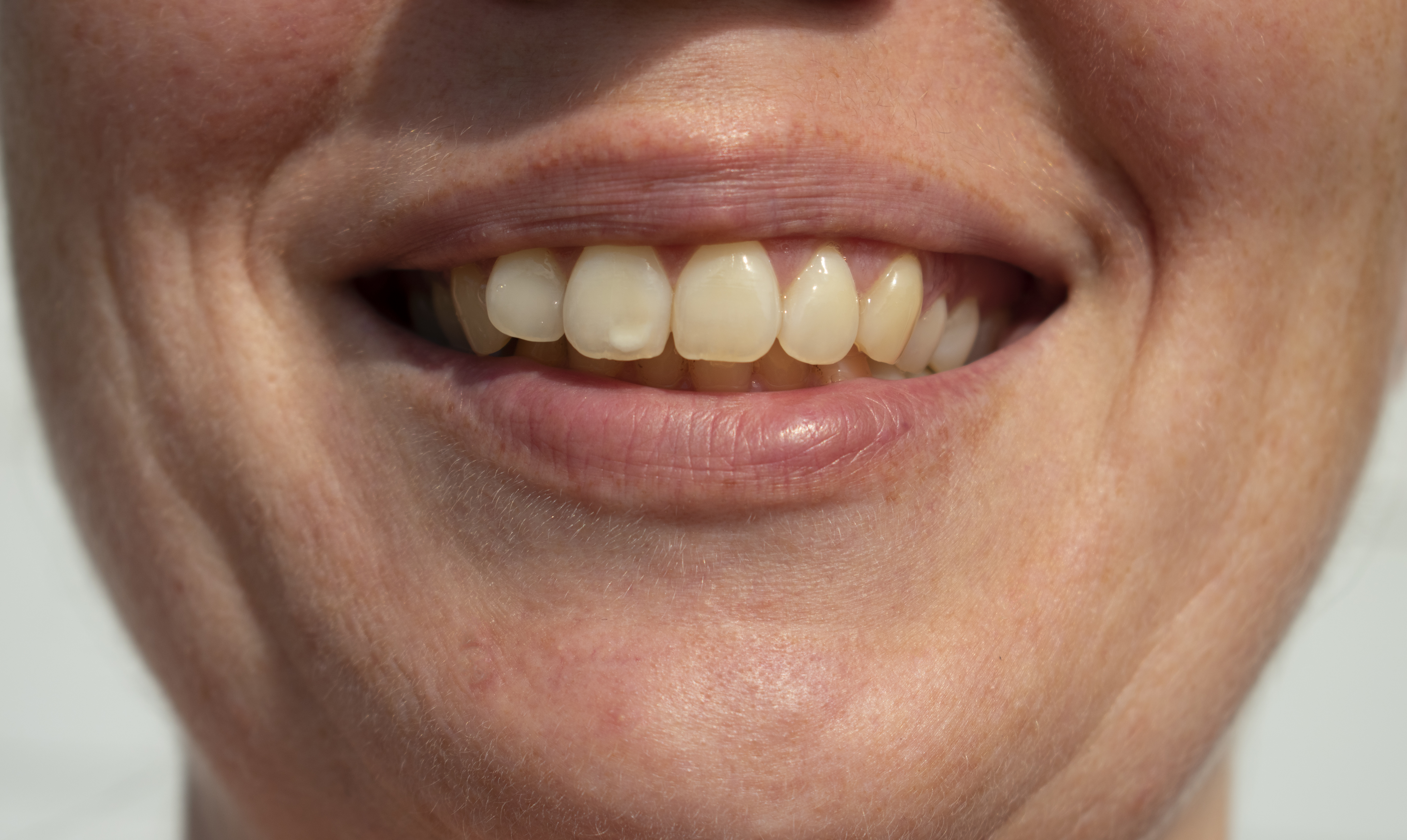 White tooth hole Tooth Cavities: